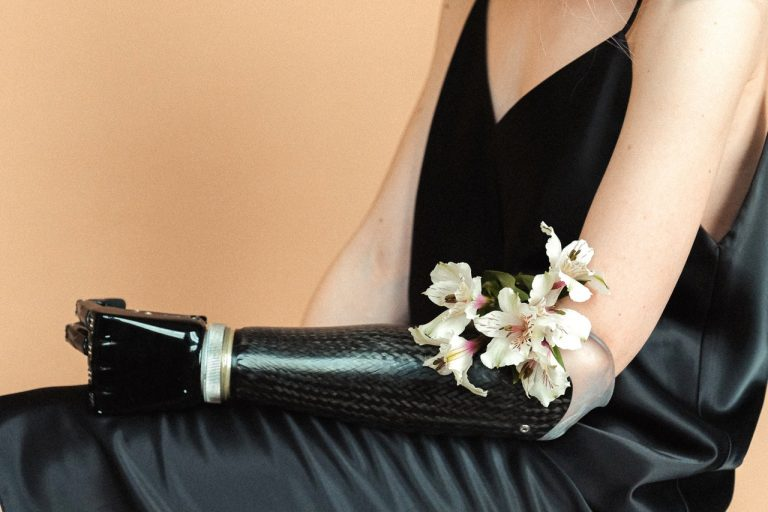 Woman wearing a black sleeveless dress holding flowers in her prosthetic arm